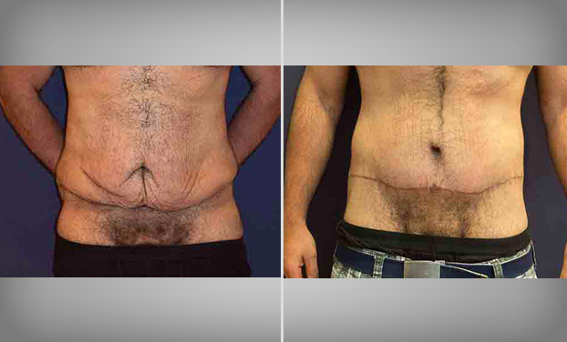 Liposuction Bristol