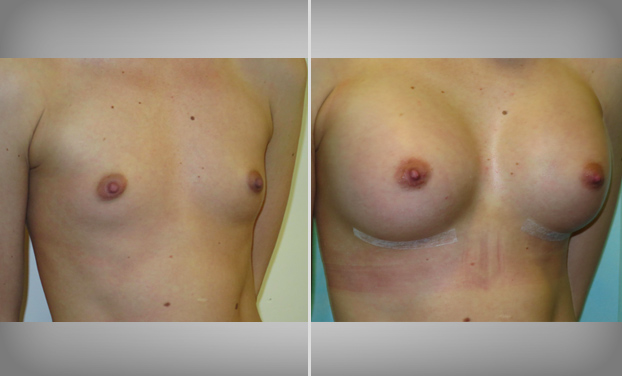Breast Enlargement in Bristol