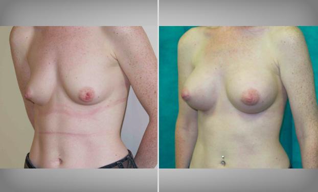 Breast Enlargement Bristol