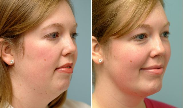 Lose your double chin with liposuction
