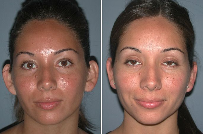 Plastic surgery as an option when you are a young adult