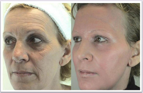 Plastic surgery can help you look as young as you feel